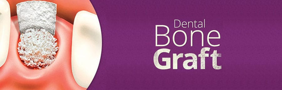 bone graft dental