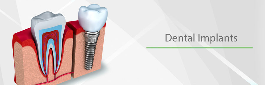 permanent teeth implants