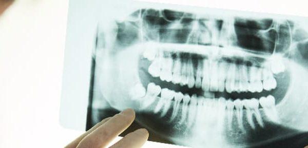 bone graft dental in USA