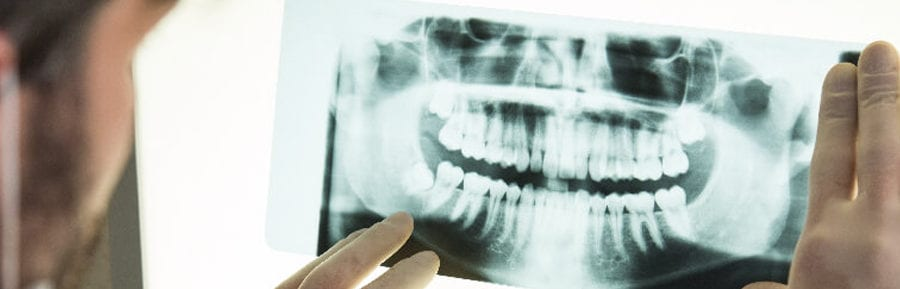 bone graft dental in USA