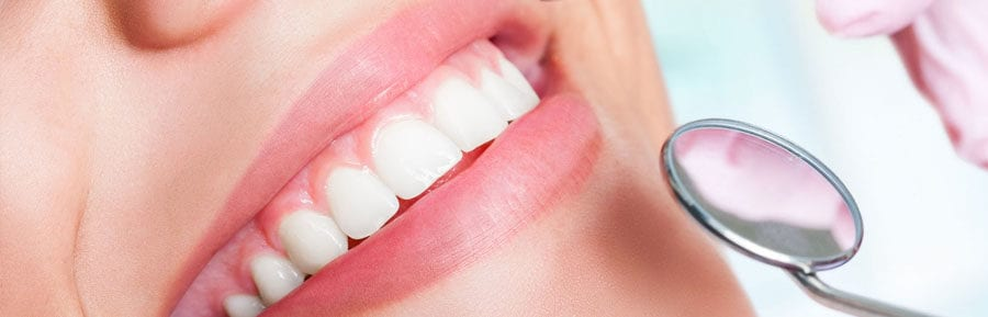 dental implants in India