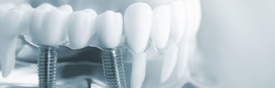 same day dental implants in India